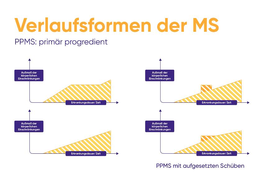 Leben mit aktiver MS und Verlaufsformen